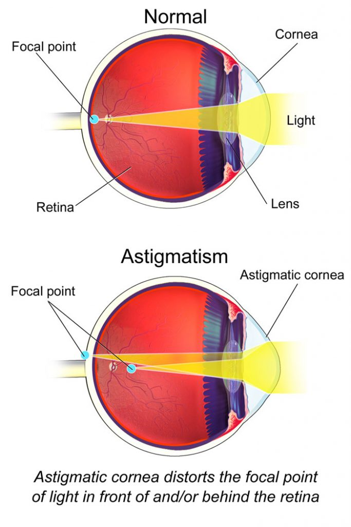 Astigmatism vizual 5. Formular de căutare
